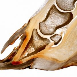Laminitis double hoof wall pathology